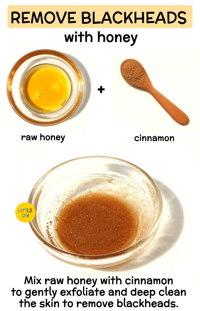Honey to remove blackheads