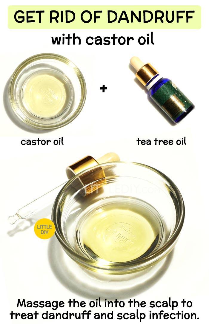 Overnight Castor oil Hair Mask to get rid of dandruff: