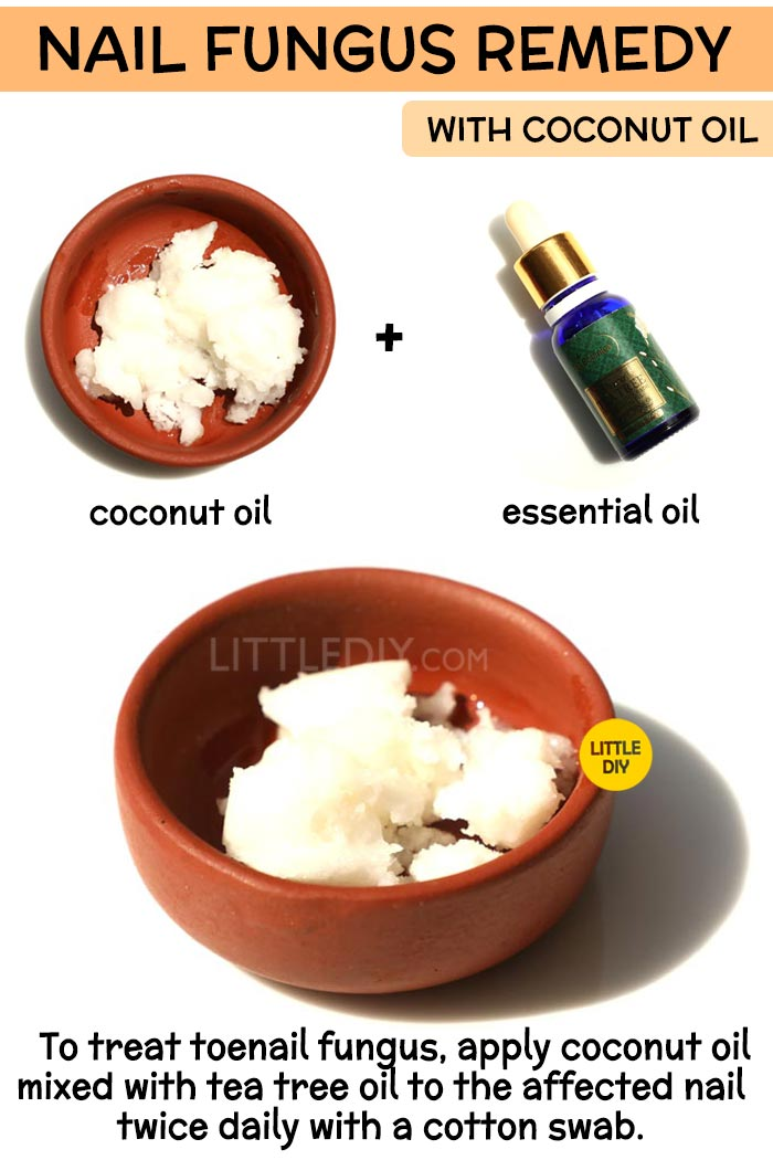 Coconut Oil nail fungus Remedy -