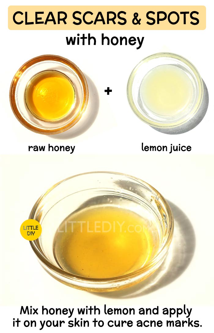 Honey to get rid of scar -