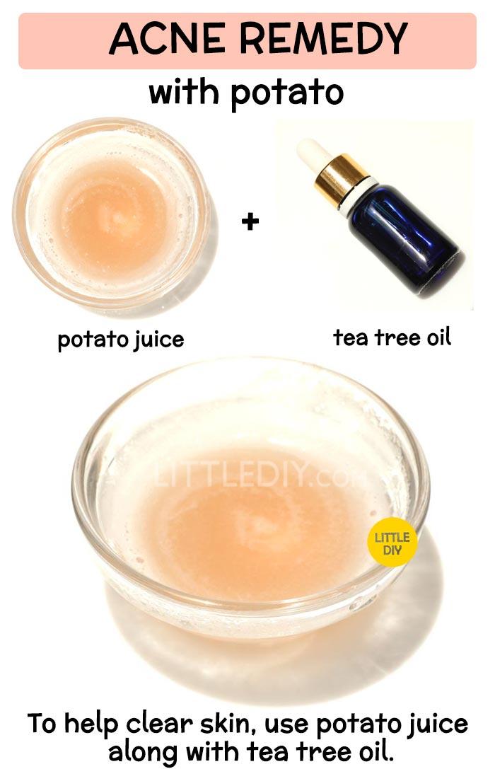 Potato to treat acne  -