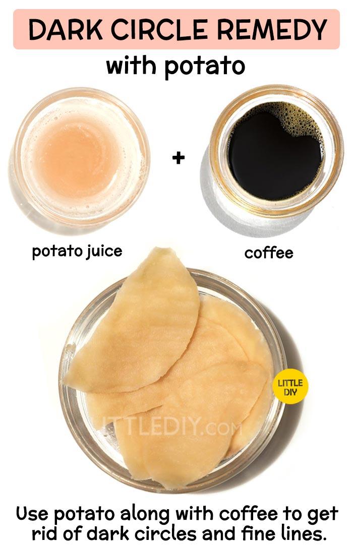 Potato for overnight dark circles remedy -