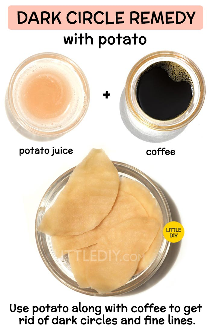 Potato for overnight dark circles remedy -