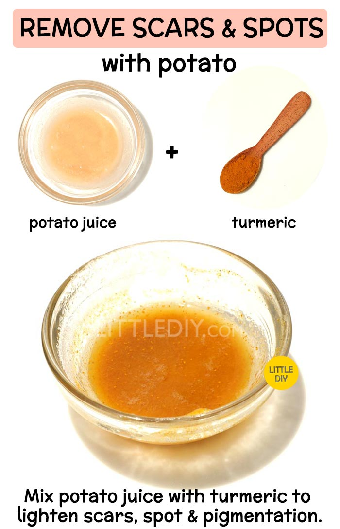 Overnight Potato Remedy for scars and pigmentation -