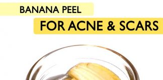 BANANA PEEL FOR ACNE AND SCARS