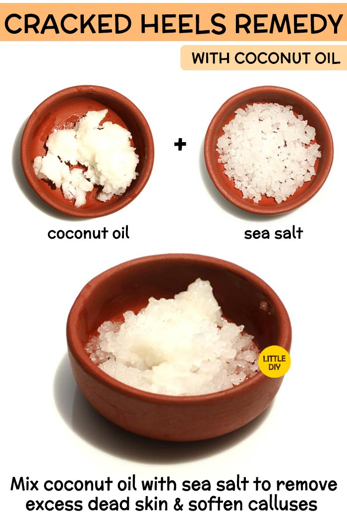 Coconut Oil cracked heels Remedy -