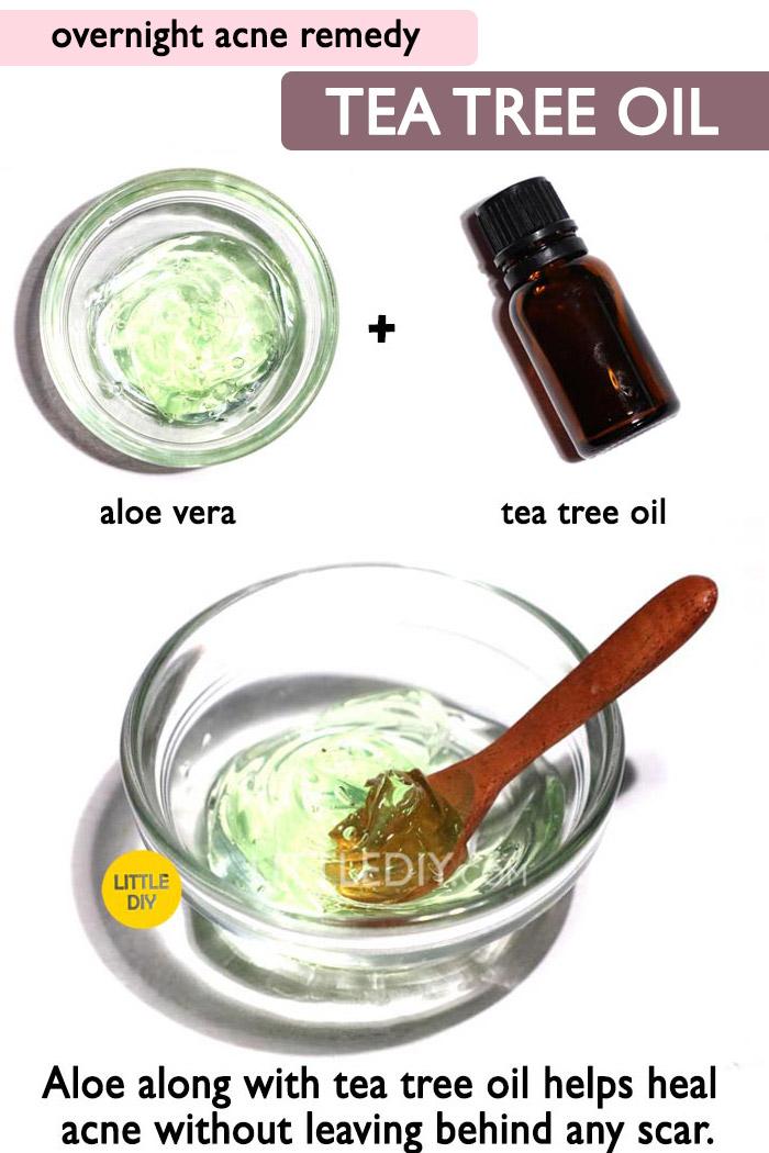 Overnight Acne Remedy with Aloe Vera -