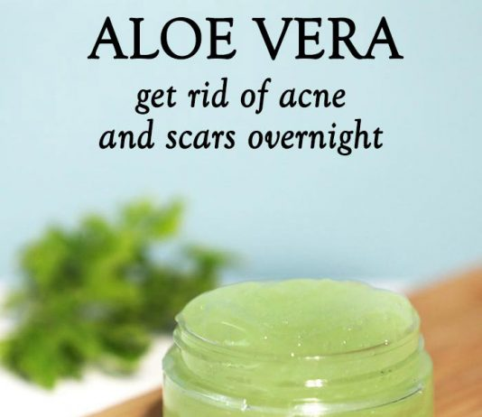 Aloe vera to clear acne and scar overnight