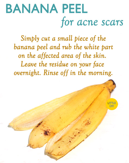 Overnight Acne scars remedy with banana peel