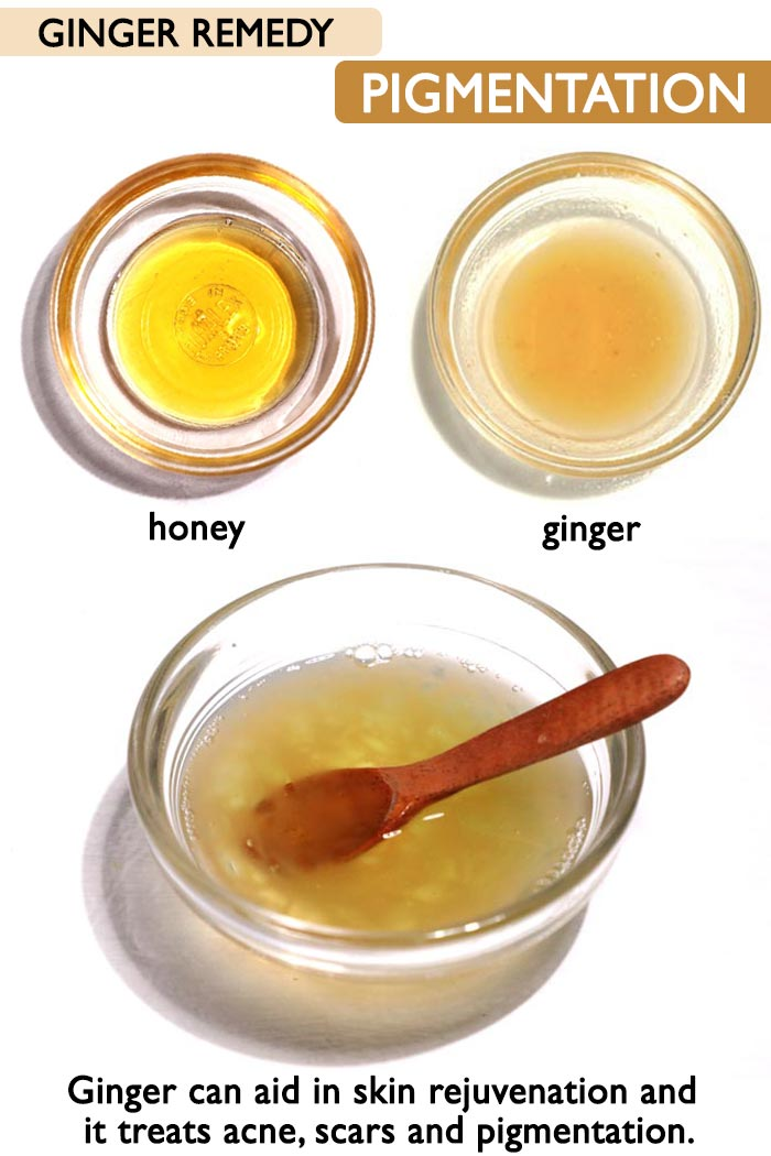 Ginger for pigmentation and acne -