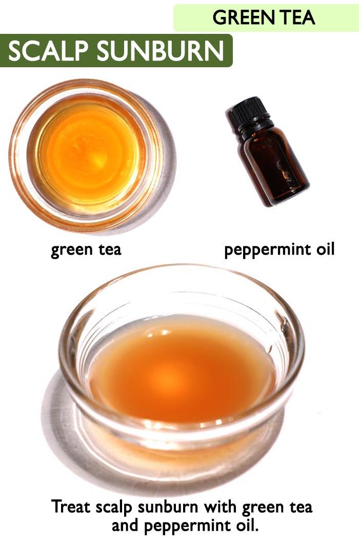 Green tea Scalp sunburn  -