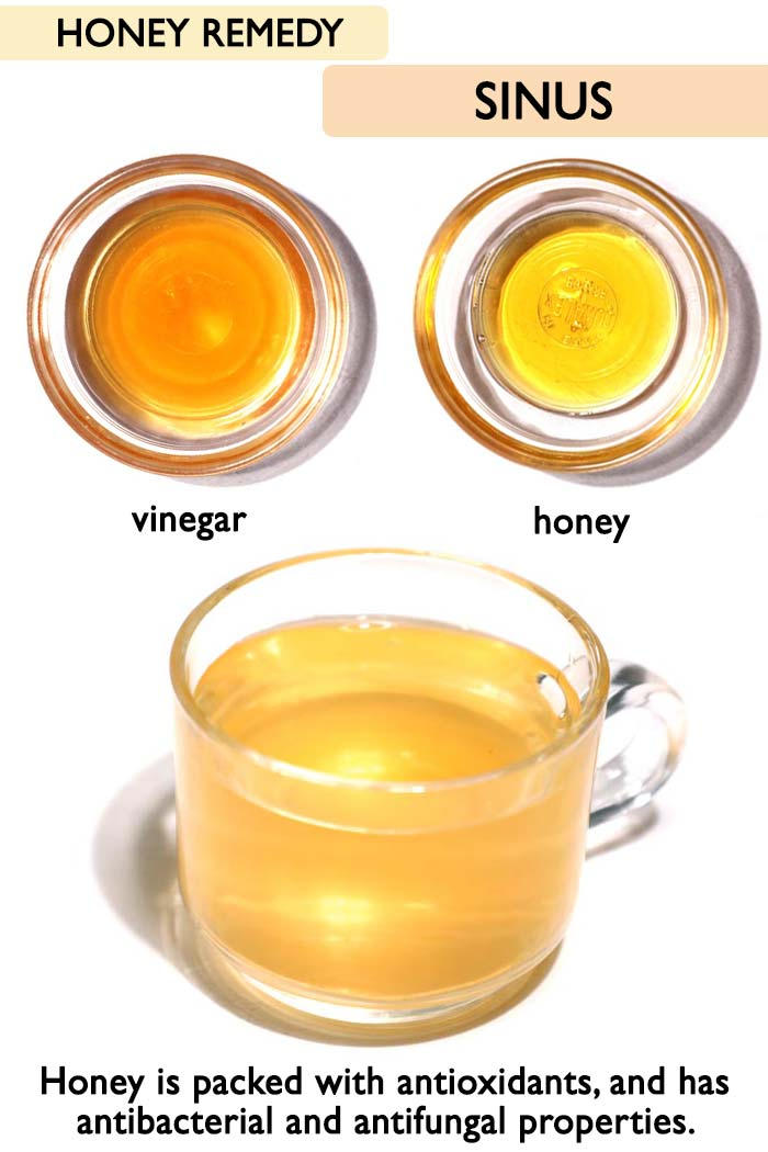 Honey sinus remedy -