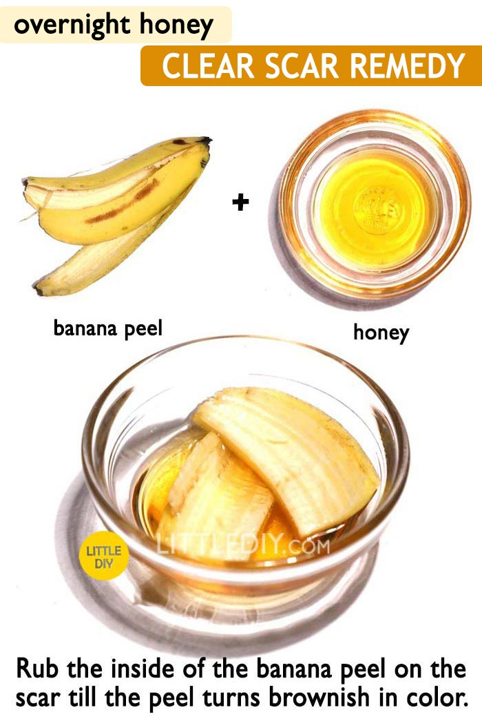 Honey overnight Pimple / Acne remedy -
