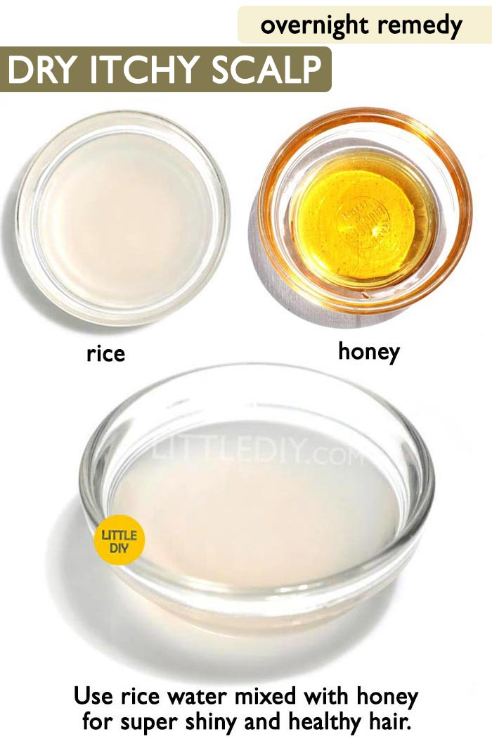 Overnight dry and itchy scalp remedy -