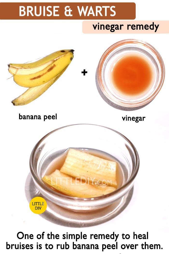 Vinegar Bruise & warts remedy -