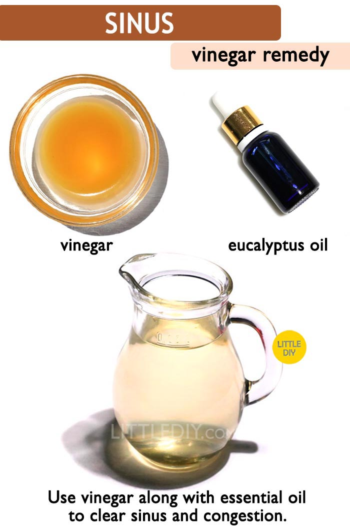 Vinegar sinus remedy -