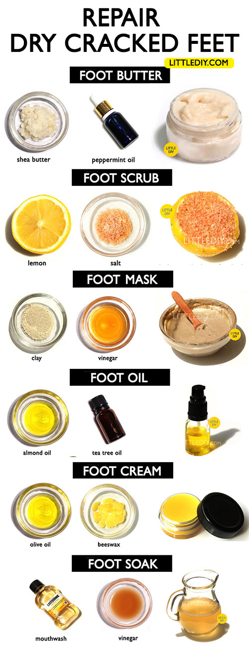 6 REMEDIES TO SOFTEN DRY CRACKED FEET